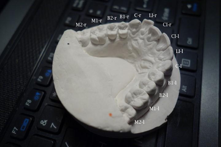 Hacker endereza sus propios dientes